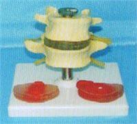 人體骨骼模型|腰椎帶三個病變椎間盤比較模型 GD-0153D