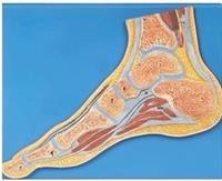 足關節剖面模型 GD/A11207