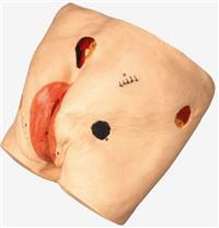 *新高級壓瘡(褥瘡)護理模型  GD/H90E