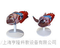 心髒解剖(自然大)(附病態動脈血管) KAH2080-4