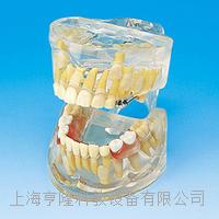 透明乳牙發育模型 KAH/B10012