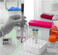 ScreenCell® CC循環稀有細胞分離培養套裝試劑盒 ScreenCell® CC