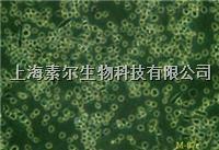 NCI-H446細胞 NCI-H446細胞