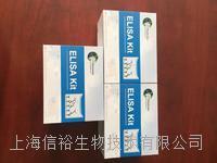 人白介素1受體拮抗劑(IL-1ra/IL-1F3)試劑盒 IL-1ra/IL-1F3