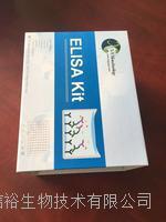 人原纖蛋白1(FBN1)試劑盒