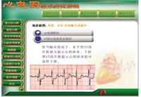 心電圖教學與考核軟件 YM/XDR