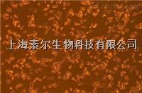 MC38细胞(小鼠结肠癌细胞系)