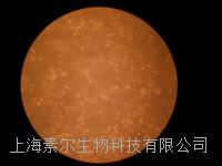 SMMC-7721细胞|人肝癌细胞;SMMC-7721细胞|人肝癌细胞培养;SMMC-7721细胞|人肝癌细胞细胞株 SMMC-7721